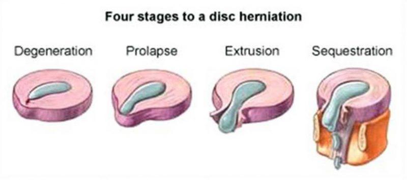 درمان بیرون زدگی دیسک کمر در اهواز