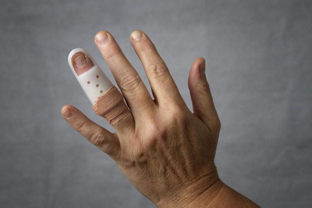 دررفتگی انگشت کوچک دست, دررفتگی انگشت شست دست, دررفتگی انگشت دست درمان, دررفتگی انگشت شست پا, دررفتگی انگشت شصت دست, دررفتگی انگشت شست, دررفتگی انگشت وسط دست, علائم دررفتگی انگشت پا