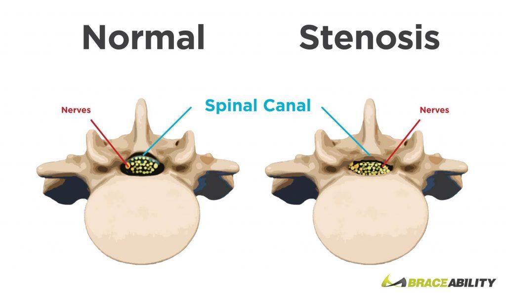 دیسک گردن, علائم دیسک گردن, ورزش دیسک گردن, درمان دیسک گردن, فیلم ورزش دیسک گردن, دیسک گردن چیست, ورزش برای دیسک گردن, ورزشهای مضر برای دیسک گردن, چگونه بفهمیم دیسک گردن داریم, دیسک گردن و سرگیجه